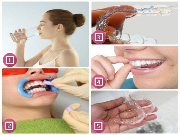 Các ưu điểm vượt trội của máng tẩy trắng răng tại nhà 1