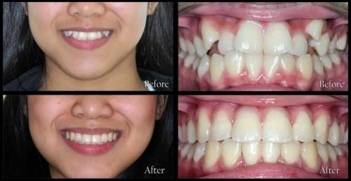 Niềng răng mất bao nhiêu thời gian phụ thuộc vào 4 yếu tố này 1