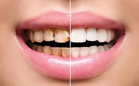 Image result for decayed teeth