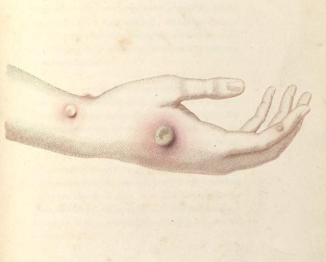 """第二项:1796年染上牛痘的奶牛场女工莎拉·内尔姆斯的前臂。爱德华·詹纳正是从她的疮中获得了牛痘材料,用它给一个8岁的男孩接种了疫苗。摘自:Edward Jenner,""""牛痘病因和影响的调查"""",1798年。"""