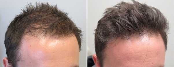 How effective is Minoxidil for hair growth? - Quora