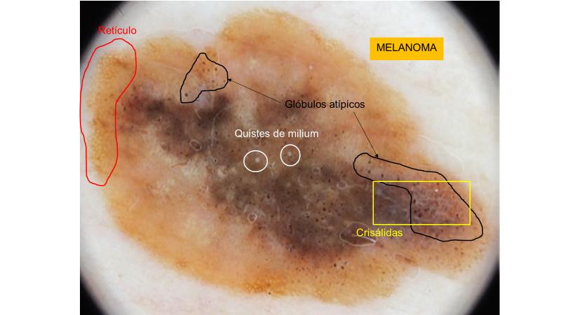 blanco en dermatoscopia: quistes de milium