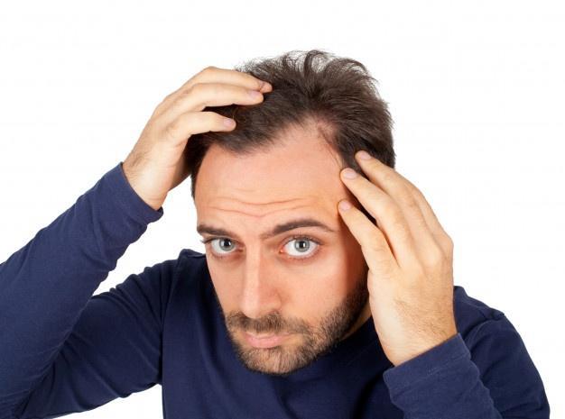 Man controls hair loss  Minoxidil Shedding