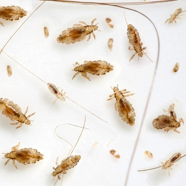 Image result for images of lice