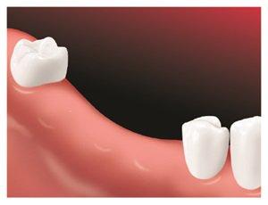 Diagram of a few teeth missing