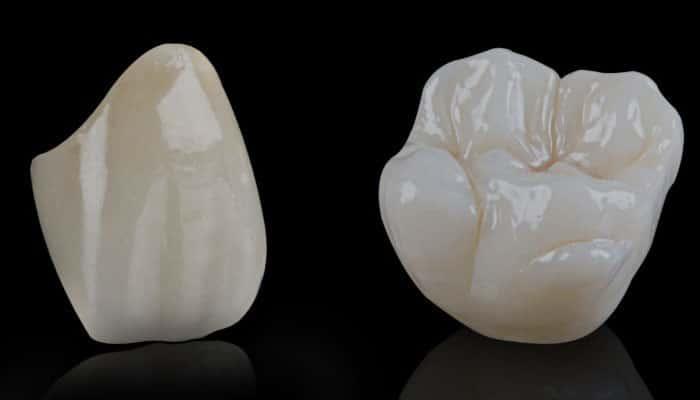 الامبرس الاسنان الداخلية