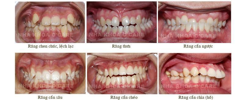 Đặc điểm và quy trình của chỉnh nha (niềng răng) bằng khay Invisalign 1