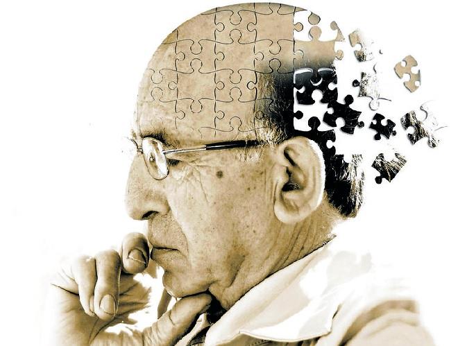 Bệnh Alzheimer thường gặp ở người từ 65 tuổi trở lên