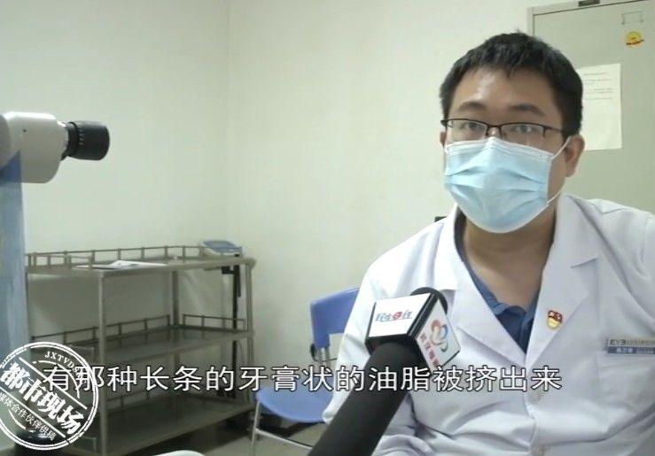 Cô gái 27 tuổi lấy ra từ mắt chất dịch như kem đánh răng, bác sĩ cảnh báo thói quen hay gặp ở giới trẻ gây ra tình trạng này - Ảnh 2.