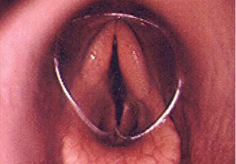 Si el catéter se rompe, generalmente es tosido hacia fuera en minutos pero si no, el catéter puede recuperarse usando un endoscopio