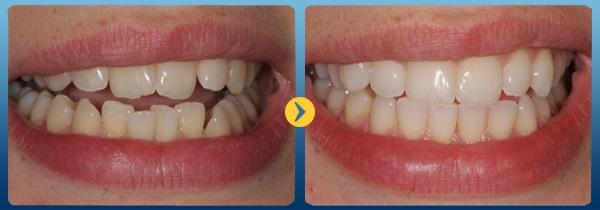 Invisalign: Công nghệ niềng răng mới không gây mất tự tin 1