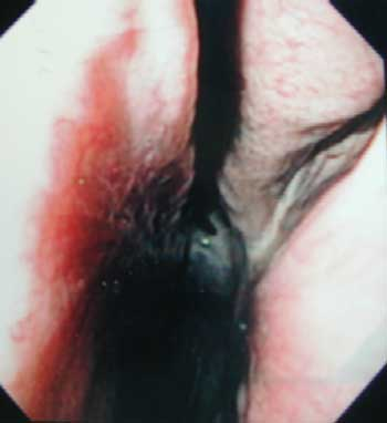Endoscopic view of the caudal middle meatus of the left nasal passage - site of nasomaxillary opening.