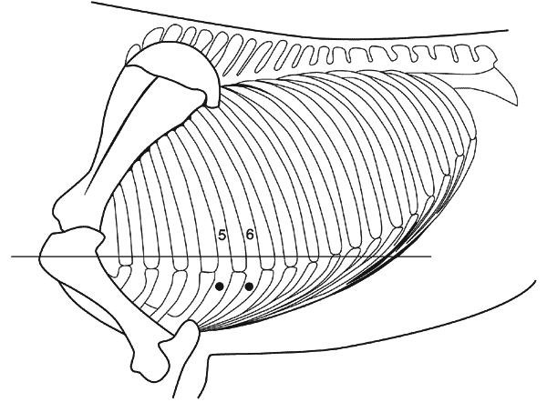 Pericardiocentesis is usually performed at the left 5th or 6th intercostal space