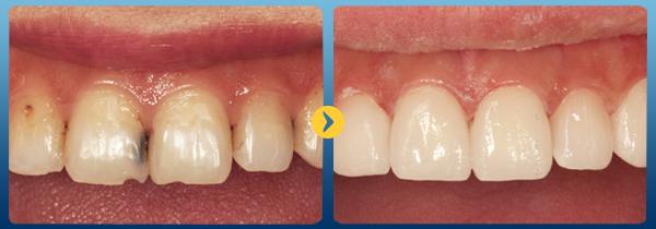 Tư vấn Bị mẻ răng cửa có trám được không? Từ bác sĩ nha khoa