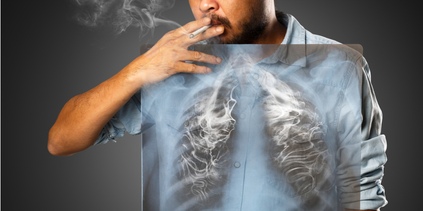 effects-of-smoking-on-the-lungs