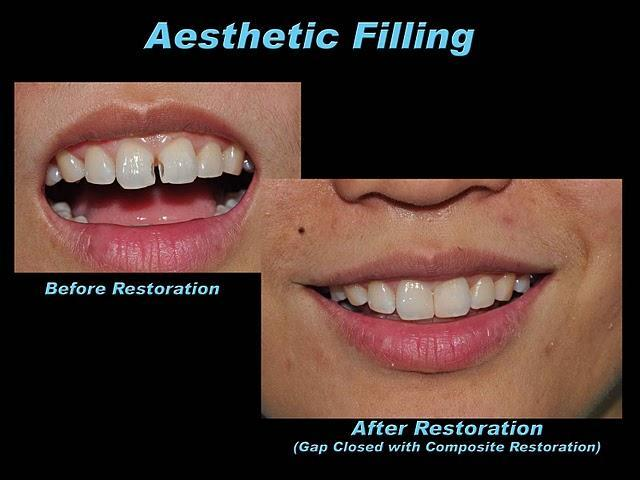 http://www.prestige-dental-care.com.my/blog/wp-content/uploads/2010/10/Filling01.jpg