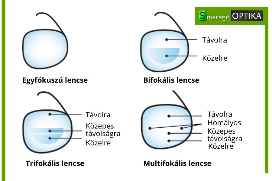 miért káros a rossz látás
