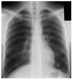 Chest X-Ray film 3 months after the treatment with fluconazol