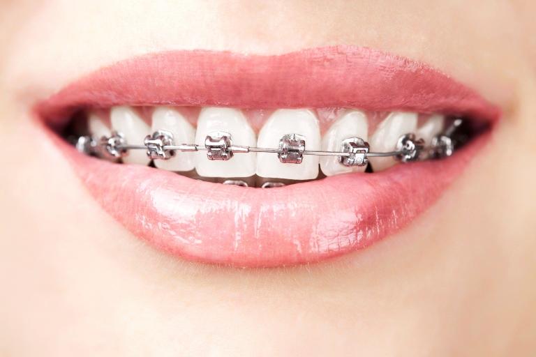 Niềng răng chi phí bao nhiêu tiền chuẩn nhất tháng 7/2018?