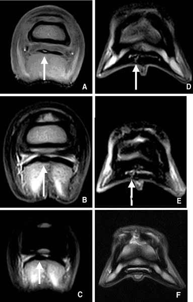 (A) T1-weighted, (B) T2-weighted, and (C) STIR images acquired with a Hallmarq distal limb scanner (0.27 T).