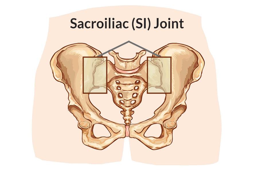 Lower Back Pain Radiate