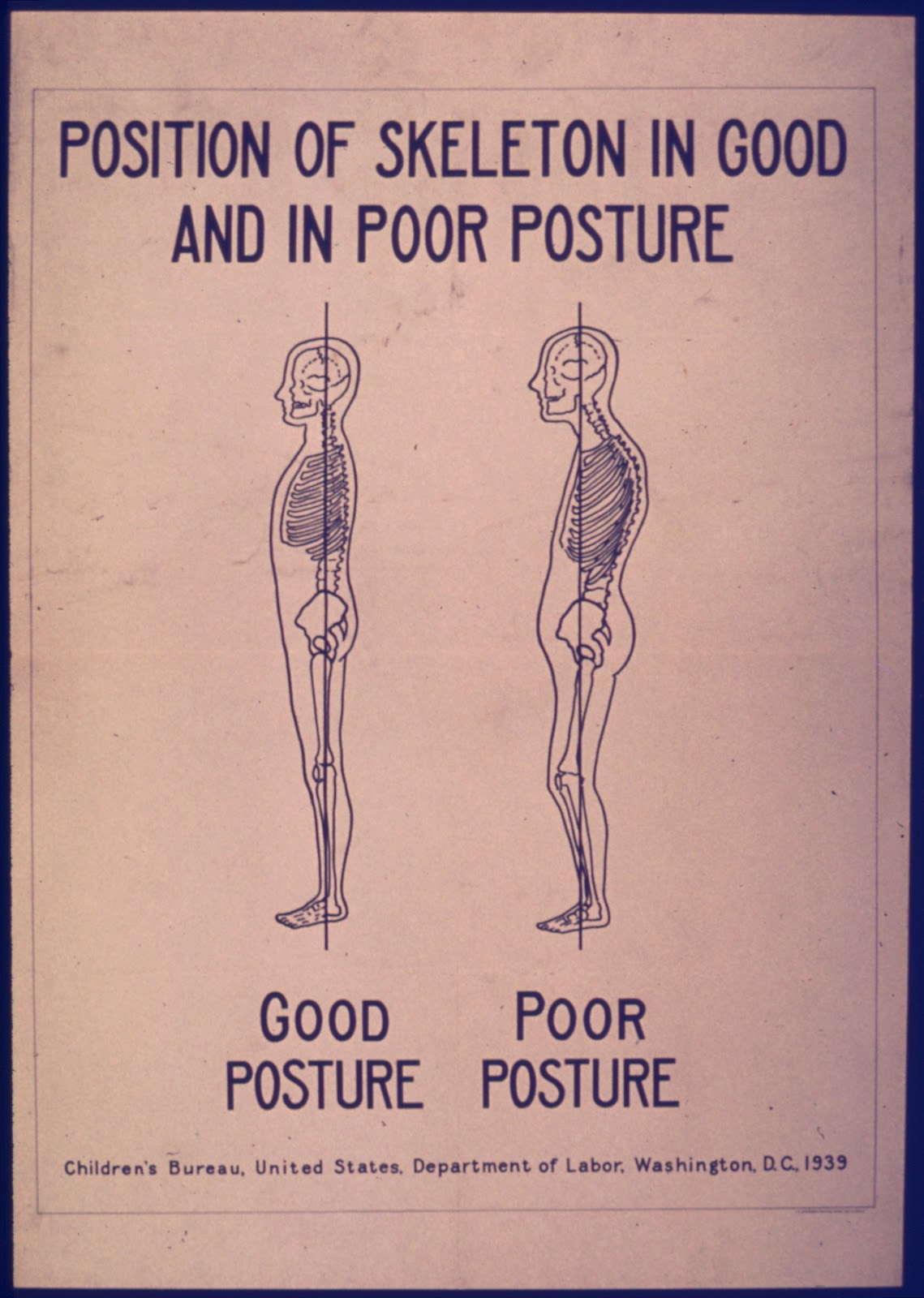 File:POSITION OF SKELETON IN GOOD AND POOR POSTURE - NARA - 515194 ...