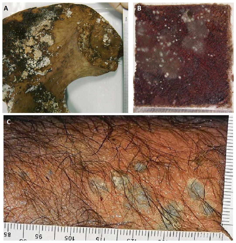 Рисунок 3 – Фотографии колоний грибов, использованных в судебной микологии: (A) пример грибов, растущих на костях; (B) пропитанный трупной жидкостью ковер с темно-серыми колониями Mucor plumbeus; (C) колонии Penicillium griseofulvum на коже трупа