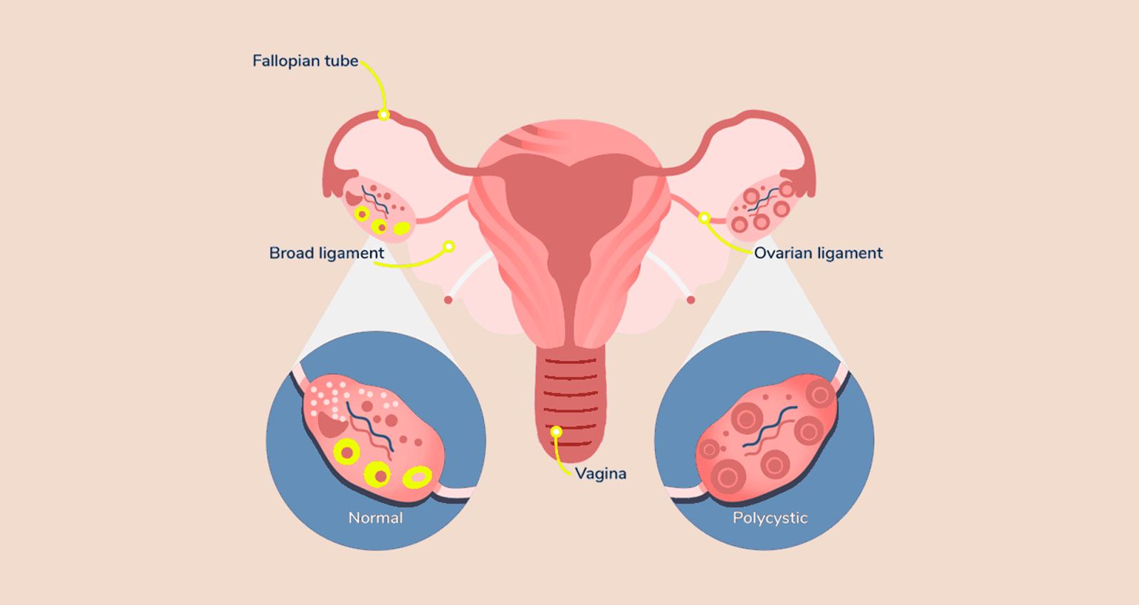 pcos ovary diagram