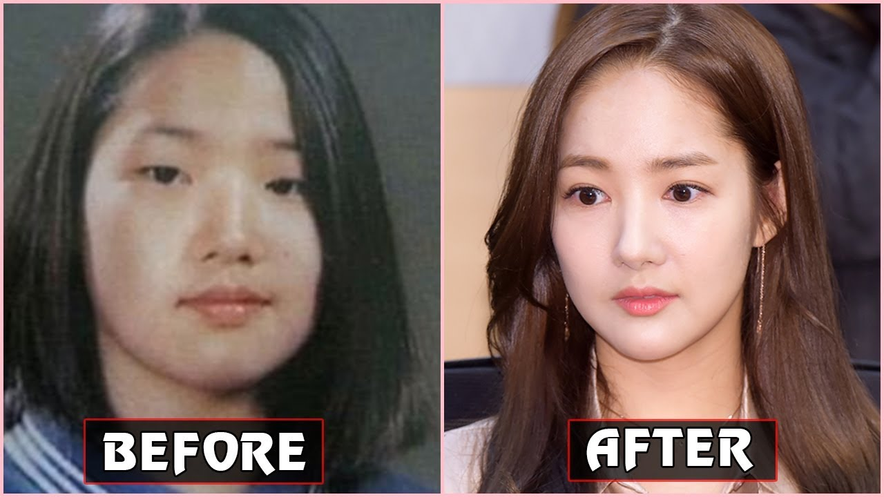 korean star before makeup surgery | saubhaya makeup