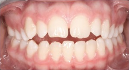 orthodontist-in-richmond-4