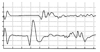 Transcranial motor evoked potentials recorded from the cranial tibial and extensor carpi radialis muscles in a dog in response to an electrical pulse delivered transcranially to the motor cortex