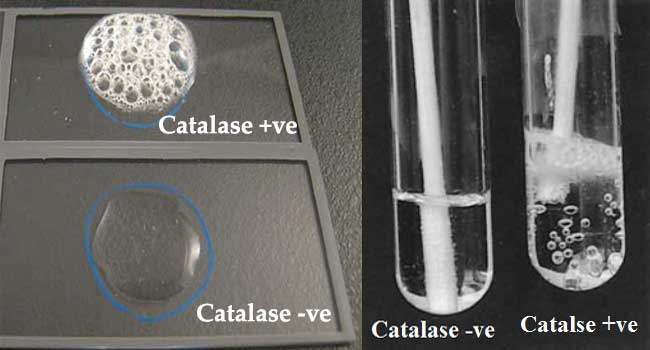 Catalase test result