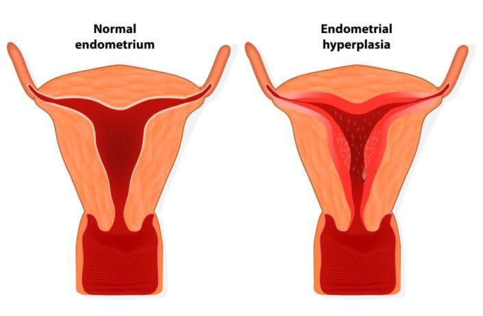 penebalan dinding rahim alias hiperplasia endometrium