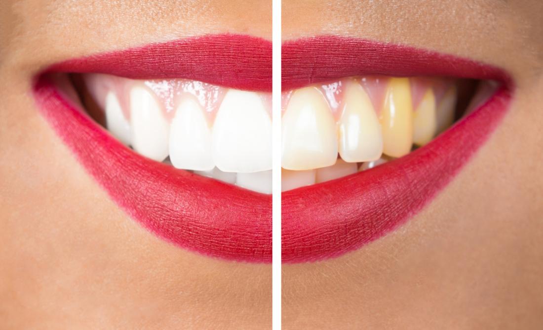 kadın dişleri beyazlatmadan önce ve sonra