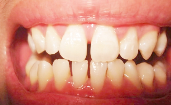 Bọc răng sứ cho răng thưa có được không? - Nha Khoa Bally