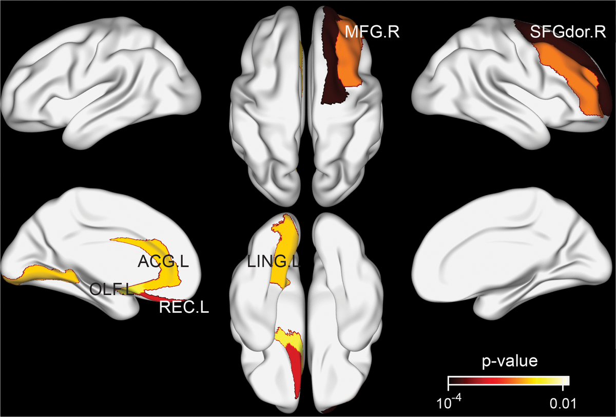 Brain regions exhibiting significant differences in structural nodal efficiency between the tea drinking group and the non-tea drinking group at the significance level of 0.01 (uncorrected) statistical evaluated by a permutation test.