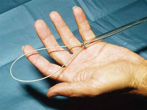 Snare formed with obstetrical wire passed through a plastic pipette.