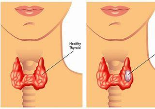 Thyroid disease's effect on fertility and pregnancy, best fertility center near best doctors for infertility near Banjara hills