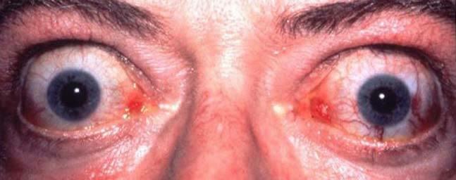 Θυρεοειδική Οφθαλμοπάθεια - Οφθαλμίατρος Θεσσαλονίκη