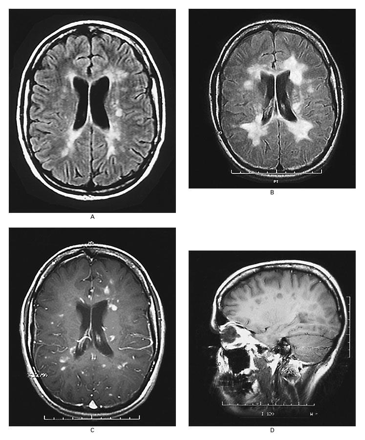 ms brain activity mri scan