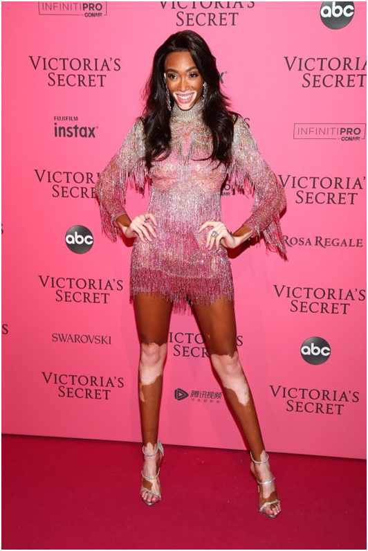 Winnie Harlow after-party look