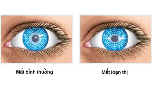 Mắt bình thường và mắt loạn thị