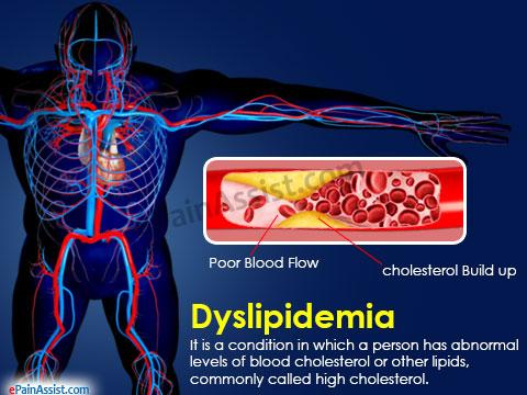 Blog 5 dyslipidemia.jpg