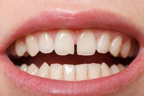 Đánh giá hiệu quả phương pháp bọc răng sứ cho răng thưa
