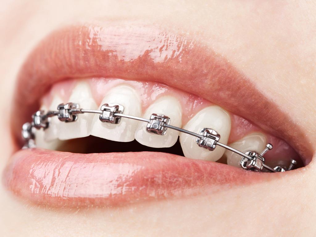Nguyên nhân khiến niềng răng thất bại - Nha khoa thẩm mỹ Bally 1