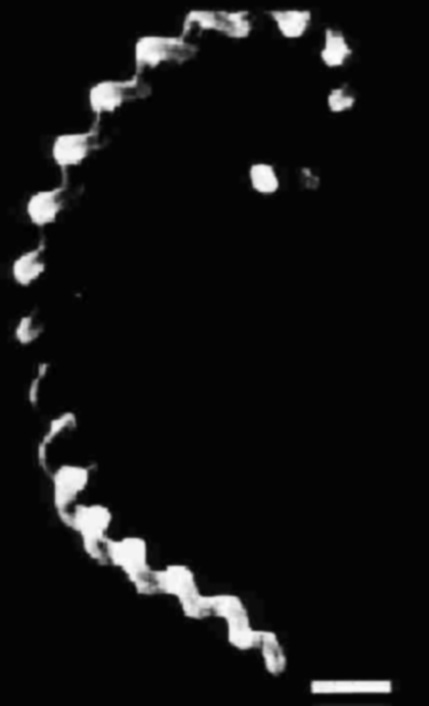 Morfología típica de leptospiras. Microfotografía electrónica. L. pomona x20,000.