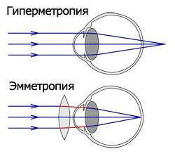 ход лучей при дальнозоркости и эмметропии