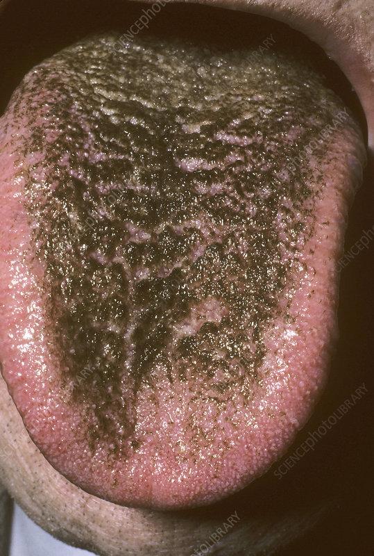 Hasil gambar untuk black hairy tongue