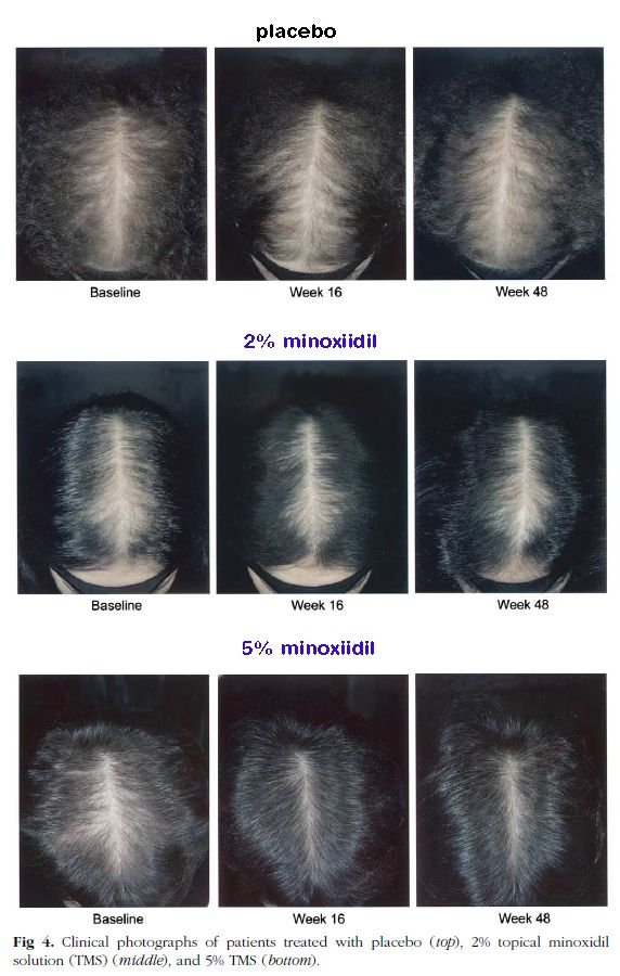 15% minoxidil before and after | Minoxidil, Sensitive scalp, Skin care hair  care
