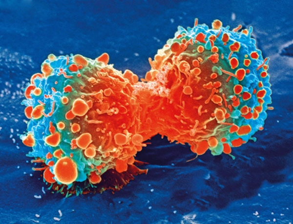 What is Cancerophobia? (An Overview)